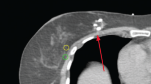CT View of the BioZorb marker in extreme medial location: a challenging position to target the AccuBoost dose.