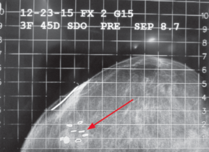 C-C image of the same patient with AccuBoost targeting coordinates identified and applicator marked.